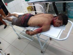 Tragédia – Homem degola a filha de 2 anos na cidade de Bequimão